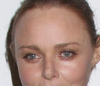 ForeheadAndNose
