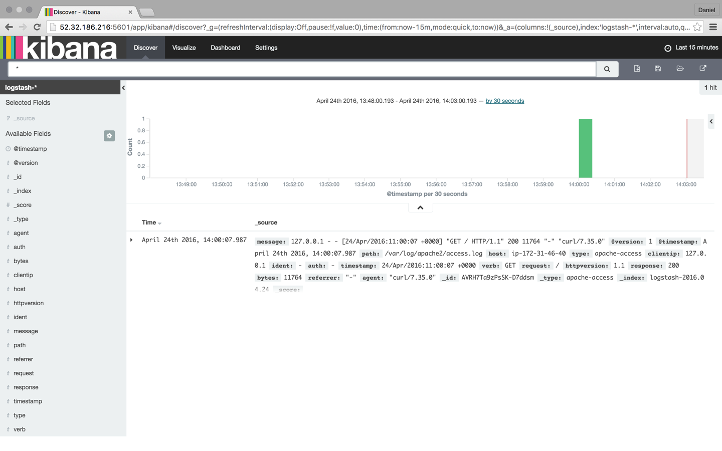 Kibana interface