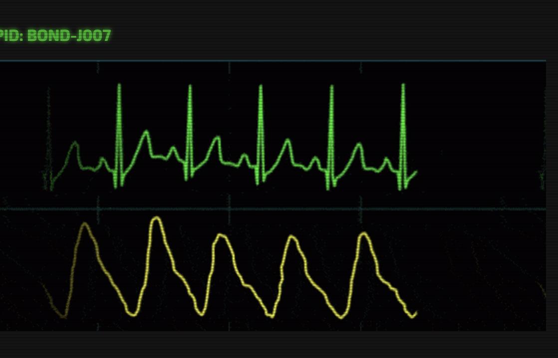 UI Code Challenge #1 - Heartbeats — SitePoint